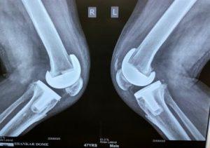 Best Knee Surgery