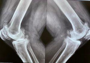 Knee Operation