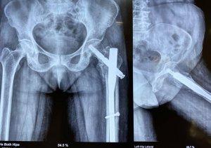 Hip Surgeon